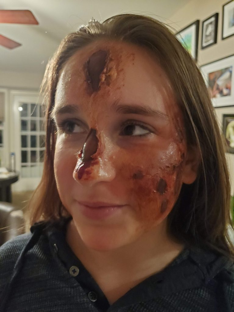 The same girl as in the previous photo but now aged 13, with disturbing special effects makeup on to look like radiation burns along her nose, forehead, and cheek.